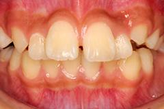 前歯の部分矯正