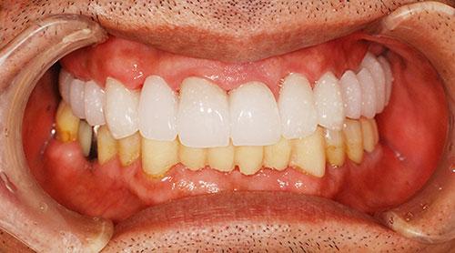 「仮歯」によるイメージの共有
