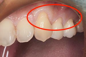 """「歯肉移植手術」で""""見た目""""を回復します"""