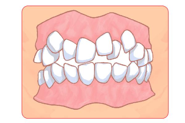 子供の「歯並び」にも対応しています